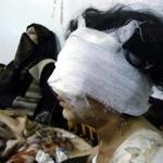 Homs violence, Syria
