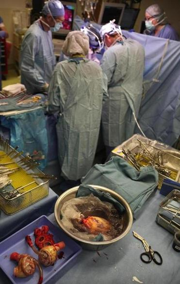 A patient undergoes a heart transplant.