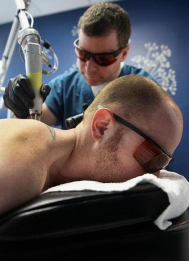 Using a laser, Rob Harris worked to remove a tattoo from Thomas Comparetto's back.