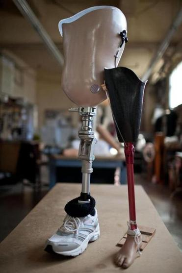 Adult and pediatric prosthetics are displayed at United Prosthetics Inc. in Dorchester