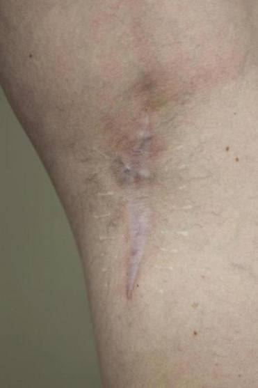 A scar on Campbell's leg shows where her cancerous mole was removed.