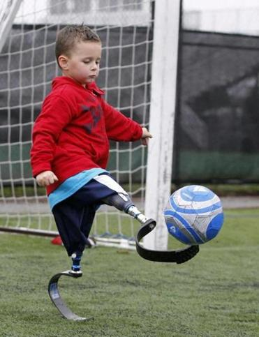Braylon O'Neill, 4, tried dribbling a soccer ball with a new pair of prosthetic legs in Boston Sunday.