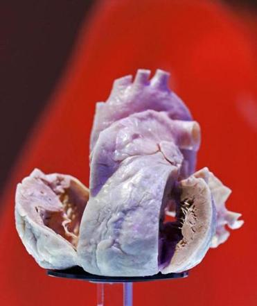 A plastinated human heart was displayed at a European cardiology conference.