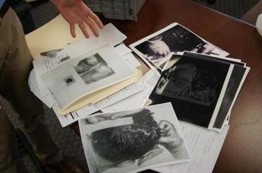 "The researchers assembled for the ""Nova'' program were given access to photos from President Kennedy's autopsy as part of their reexamination using modern techniques."