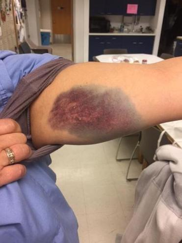 09zobella - Nurse at Leominster's HealthAlliance Hospital displays bruise after she was assaulted by a patient in January. She suffered a rotator cuff injury that required surgery and was out of work for three months. (Massachusetts Nurses Association)