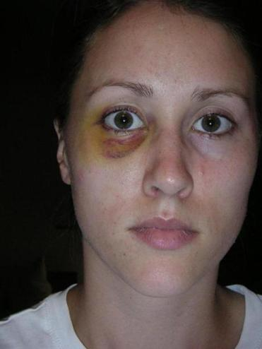 Rob Porter's ex-wife Colbie Holderness is pictured in a photo from 2005, when she says Porter gave her a black eye on an Italy trip. Must credit: Photo courtesy of Colbie Holderness