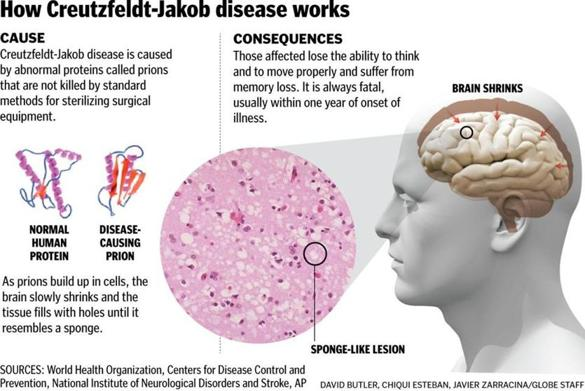 the mysteries surrounding creutzfeldt jacob disease Creutzfeldt-jakob disease (cjd) is a rare, degenerative brain disorder cjd progresses rapidly and is fatal learn how to prevent cjd.