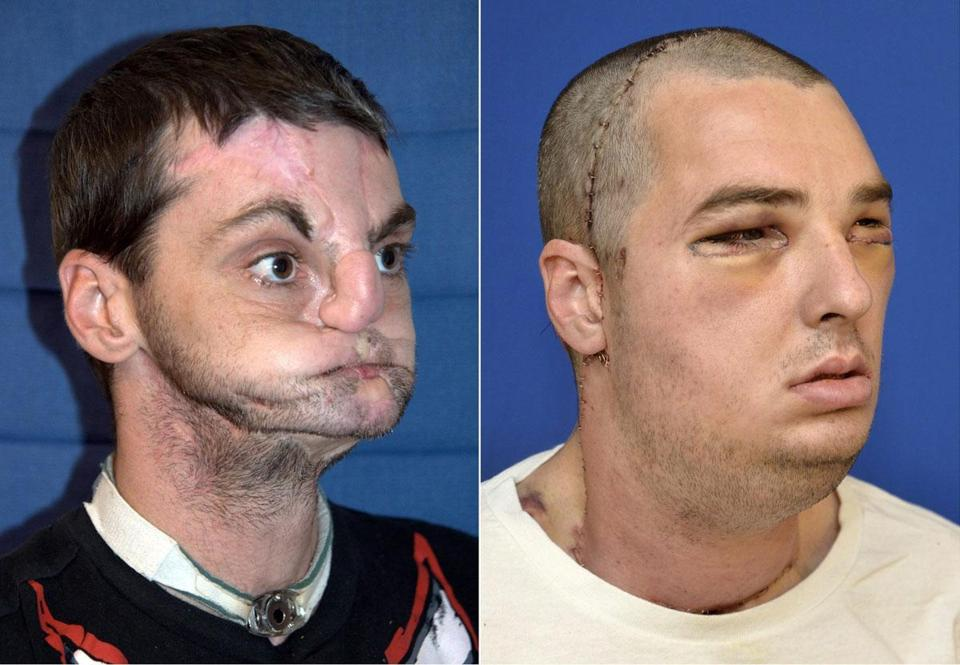 Richard Norris, before and after face transplant surgery.