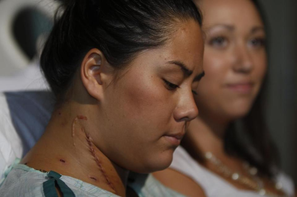 Allie Young, 19, left, recounts how Stephanie Davies, 21, right, saved her life during the mass theater shooting in Aurora by applying pressure to a gushing neck wound and helping her to safety.