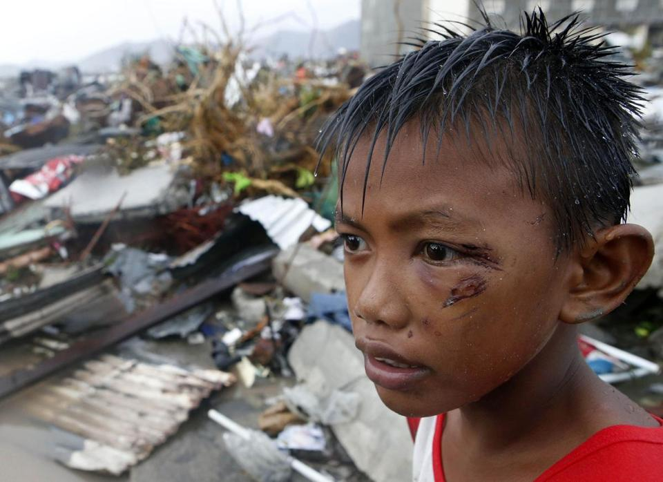 A boy wounded by flying debris stayed near the ruins of his home in Tacloban.