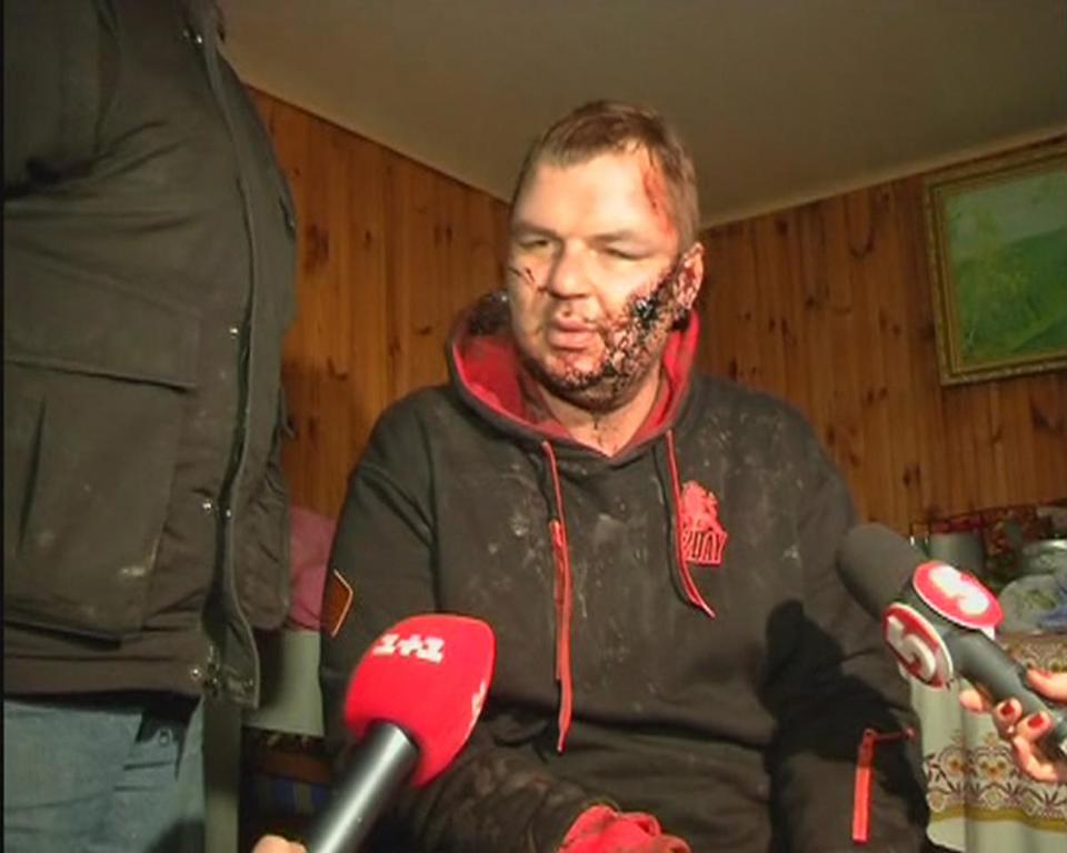 Dmytro Bulatov stumbled out of a snowy forest after he had been missing for a week. He said his abductors nailed his hands to a door, beat him for days, and crucified him.