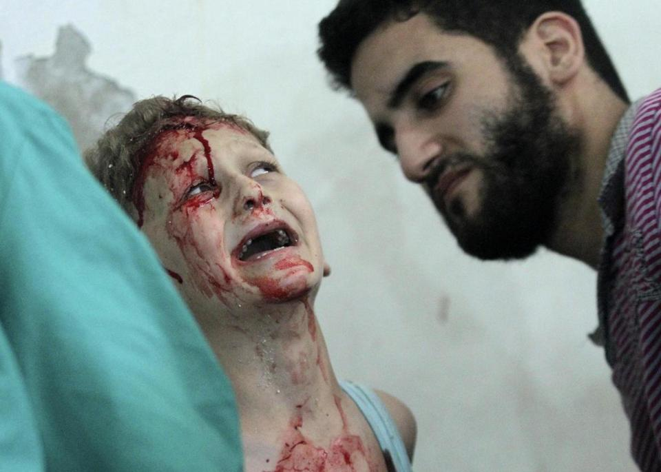 A boy who was injured in an airstrike Tuesday received help in Duma, near Damascus.