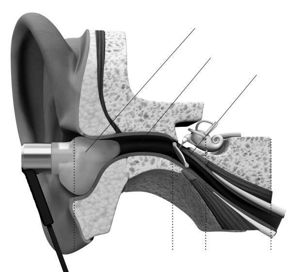 Lantos' earbuds are tailored to fit your ear canal.