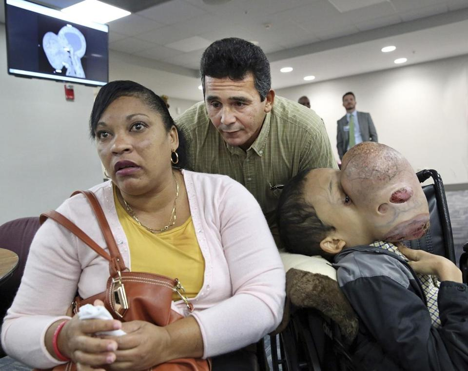FILE - In this Jan. 12, 2018, file photo, Emanuel Zayas sits with his parents Noel Zayas and Melvis Vizcaino at Holtz Children's Hospital at Jackson Memorial in Miami. Emanuel Zayas died Friday, Jan. 19, 2018, days after doctors removed a 10-pound tumor from his face. (C.M. Guerrero/Miami Herald via AP, File
