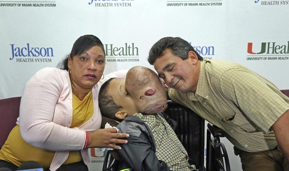 FILE - In this Dec. 22, 2017, file photo, Emanuel Zayas, 14, sits with his parents Noel Zayas and Melvis Vizcainos at Holtz Children's Hospital at Jackson Memorial in Miami. Emanuel Zayas died Friday, Jan. 19, 2018, days after doctors removed a 10-pound tumor from his face. (C.M. Guerrero/The Florida Times-Union via AP)