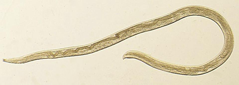 Thelazia gulosa, a type of eye worm seen in cattle in the northern United States and southern Canada, but never before in humans.