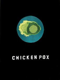 Ruth Cuthand, Trading: Chicken Pox, 2008.