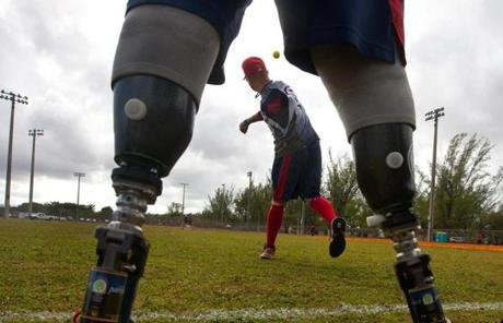 Framed by the prosthetic legs of teammate Josh Wege, Greg Reynolds warms up before a softball game.