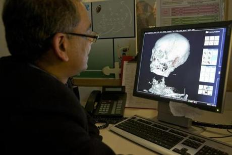 Dr. Rajiv Gupta checked out the first CT images of Padihershef
