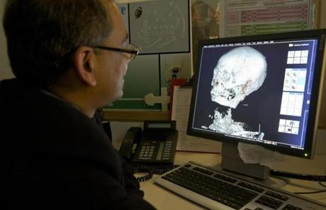 Dr. Rajiv Gupta checked out the first CT images of Padihershef.