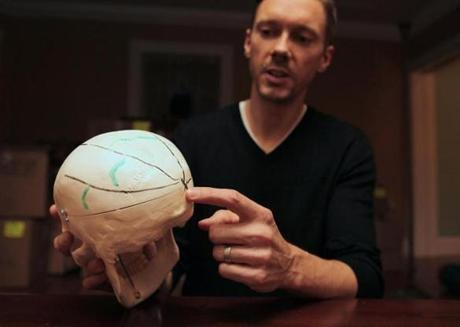 Dr. Peter Cummings, who examined President Kennedy's autopsy records, uses a 3-D model of JFK's skull to show where the bullet hit.