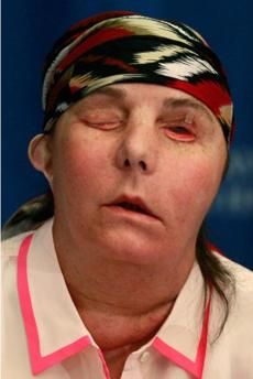 Carmen Blandin Tarleton, pictured last May — a few months after her face transplant surgery.