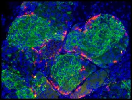 Pancreatic cells that secrete insulin.
