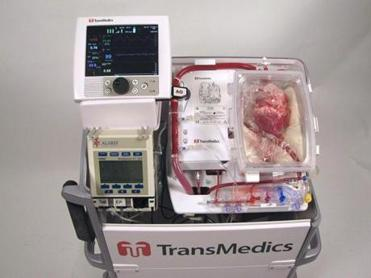 A new device circulates blood through a donor's heart and keeps it beating in a transparent plastic case after removal.