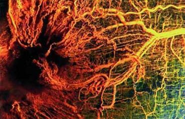 Blood vessels growing toward a tumor.