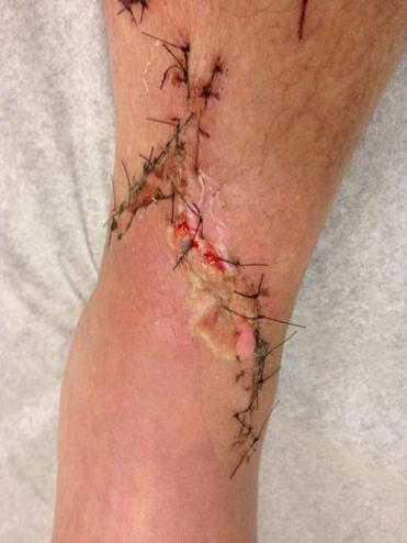 Chris's left leg shows the damage done by a great white.