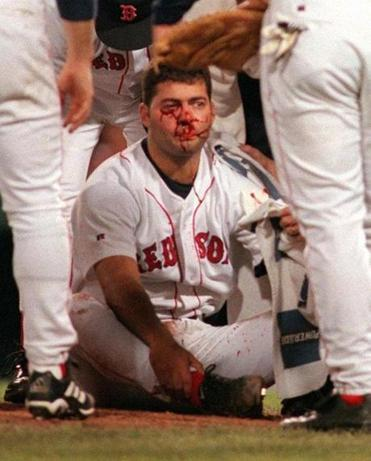 Florie after being hit.