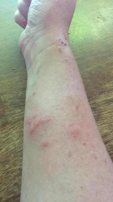 25moths - Plymouth resident Tammy Morey received a rash on her arm from caterpillars. (Tammy Morey)