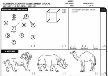 Heres A Look At The Cognitive Test