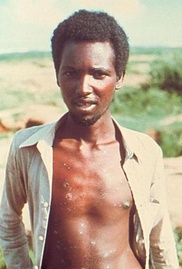 403111 04: Twenty-Three-Year-Old Ali Maow Maalin, The Last Known Person In The World With Smallpox, Is Shown In This Undated Photo In Merka, Somalia.