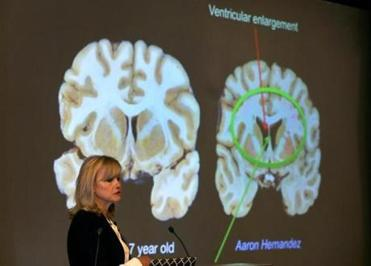 Boston-11/09/17- Dr Ann McKee announced her findings on her examination of the brain of Aaron Hernandez during a press conference at Boston University. She shows Hernadez's brain(right) compared to a normal 27-year-old's brain and the ventricular enlargement in Hernandez brain. John Tlumacki/Globe Staff(sports)