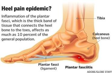 This foot condition is the new back pain — it's everywhere - The Planters Fasciitis Pain on planters warts, planters phasiatis com, planters facetious treatment of symptoms, planters feet pain,