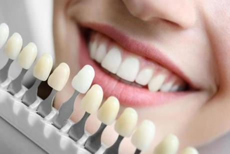 A top tip for looking several years younger? Bleach your teeth, either at the dentist or at home.