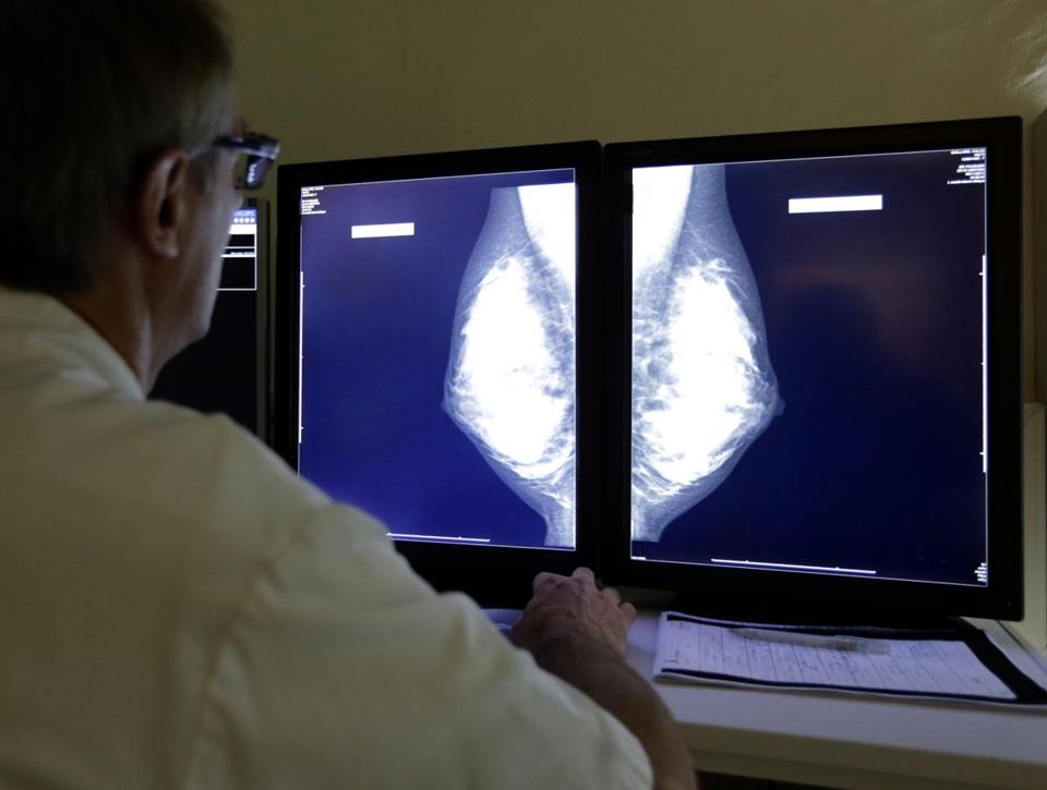 A radiologist examined breast X-rays.