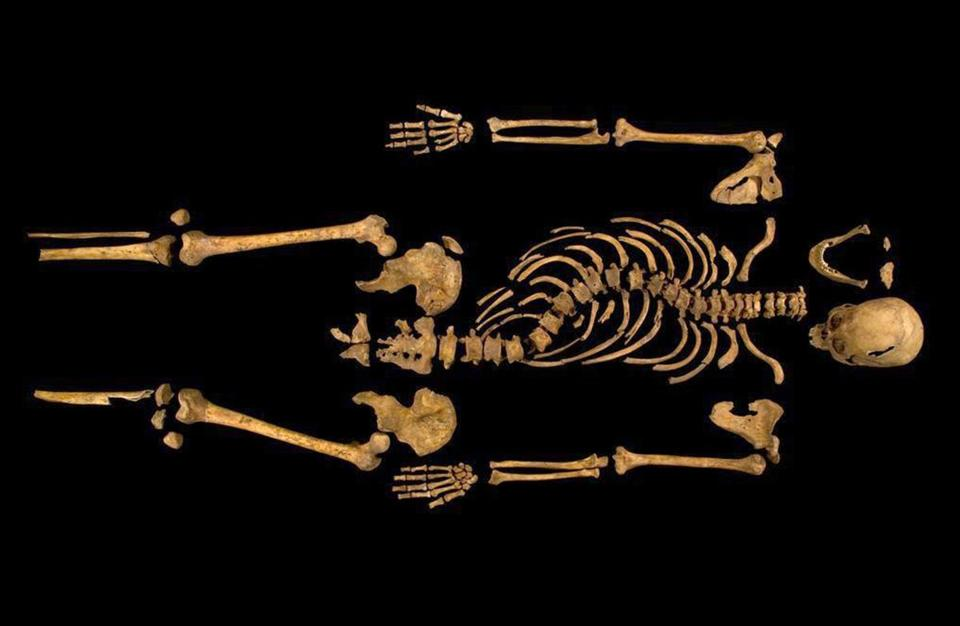 The remains show a spinal curvature, which is considered King Richard III's most prominent physical feature.