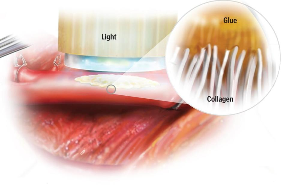 Glue and Light: Researchers at Brigham and Women's Hospital, Boston Children's Hospital, and MIT have developed a new type of elastic glue that cures after being exposed to light for 5 seconds.