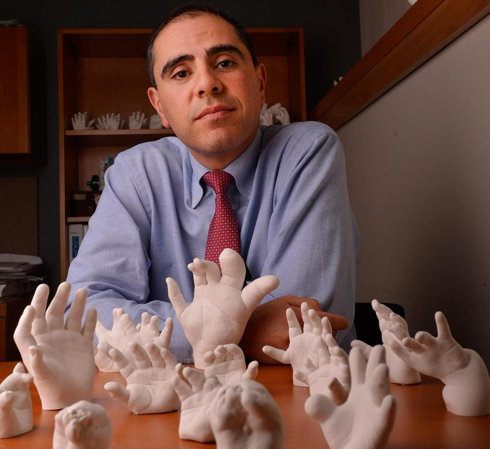 Amir H. Taghinia, with models of hand deformities.