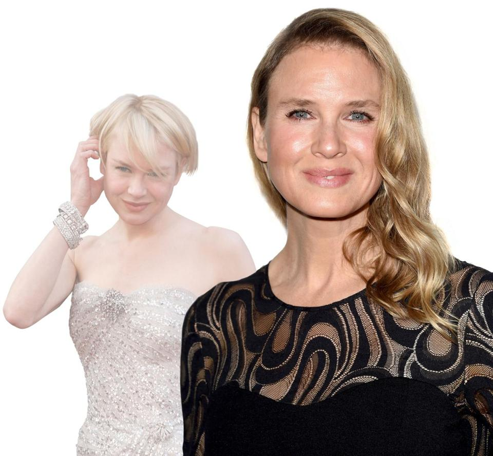 Actress Renee Zellweger is under public scrutiny for getting cosmetic surgery, after which she looks significantly different (right) than her younger self (left).