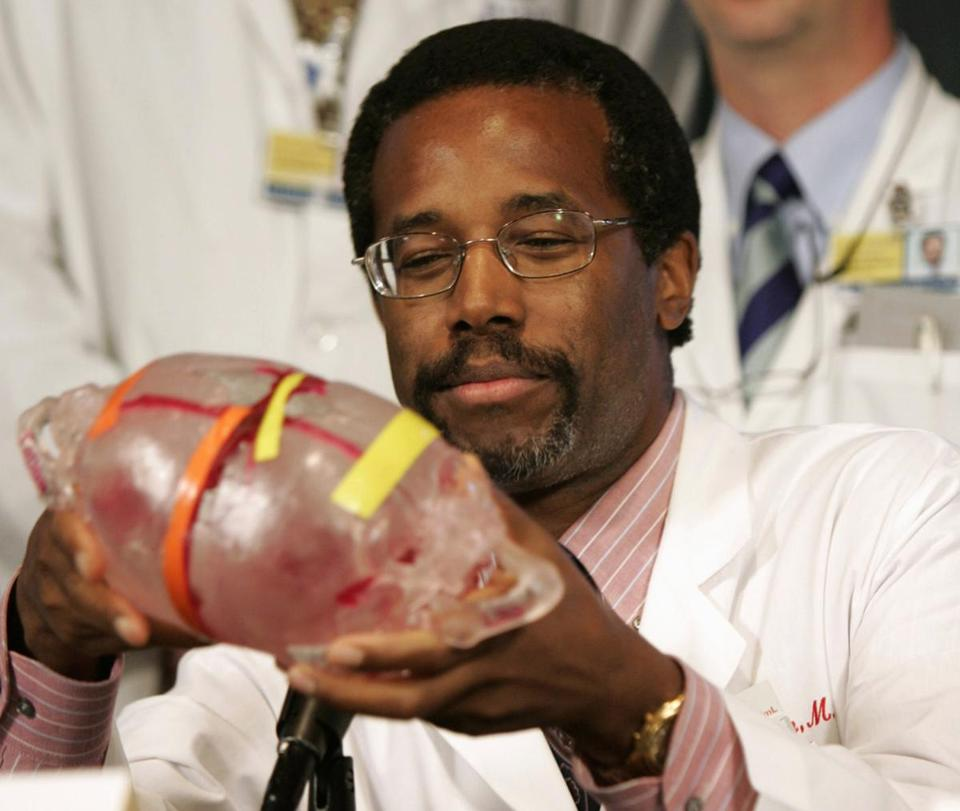 Conjoined twin separation that launched ben carson s fame for The carson