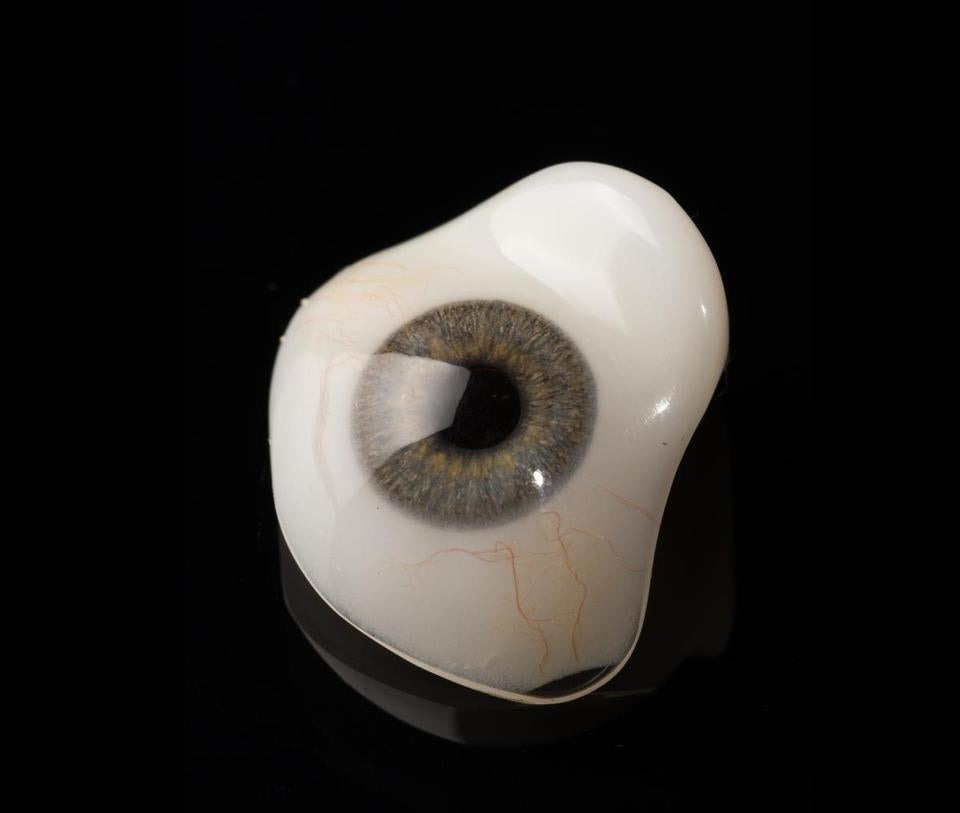 prothesis /ocular Our goal for you our client is to have the best care with minimal visits and the best possible outcome, we will provide a service that puts your needs first through every step in the.