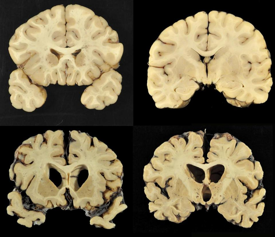 A combination of photos provided by Boston University shows sections from a normal brain, top, and from the brain of former University of Texas football player Greg Ploetz, bottom, in stage IV of chronic traumatic encephalopathy.