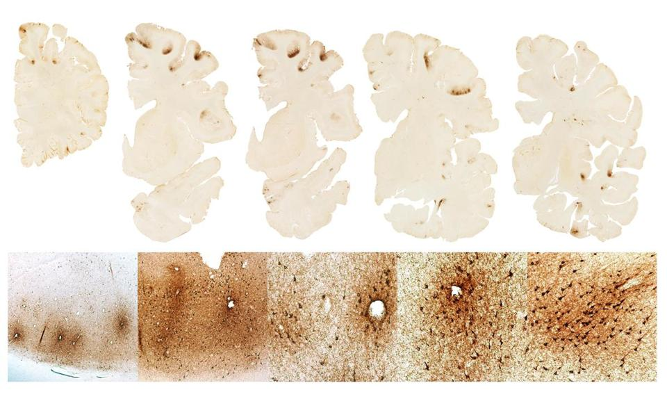 This graphic shows the classic features of CTE in the brain of Aaron Hernandez.