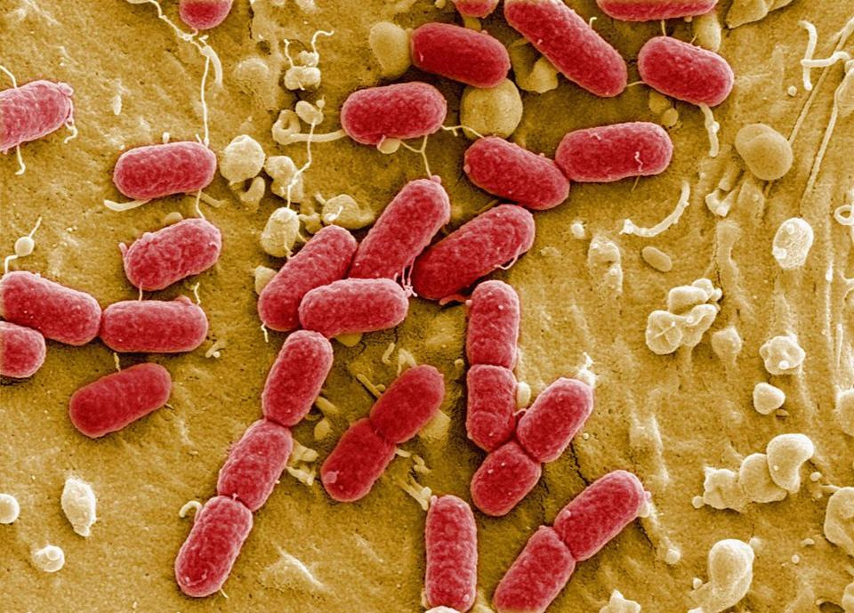 Enterohemorrhagic E. coli, EHEC for short, comprises strains of bacteria that disrupt the GI tract and cause bleeding.