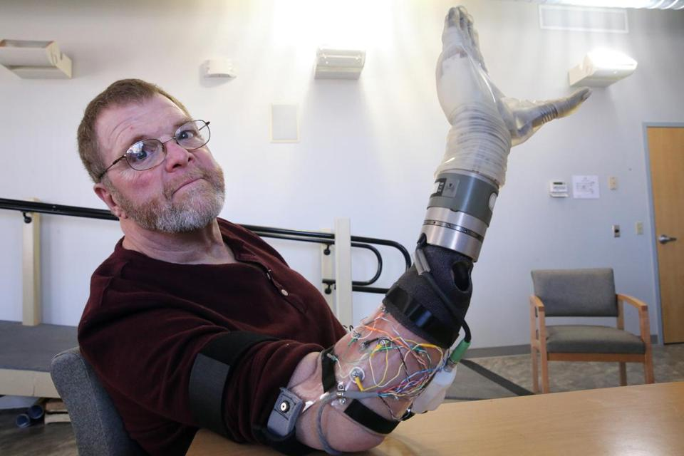 (STORY EMBARGOED UNTIL FEB 22) Boston, MA- February 13, 2018: Air Force veteran Ron Currier, 63, poses for a portrait with a LUKE Arm at Next Step Bionics and Prosthetics, Inc. in Manchester, NH on February 13, 2018. Air Force veteran Ron Currier, 63, lost both arms in a high voltage accident when he was 20 years old. He is now being fitted with a second LUKE (Life Under Kinetic Evolution) Arm, his right, that will be controlled by electrodes attached to his arm and patterns recognition software. His current LUKE Arm, his left, is controlled with Inertial Measurement Units (IMUs) that are worn on the shoes. (Craig F. Walker/Globe Staff) section: metro reporter: