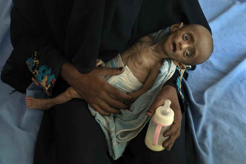 Five-month-old Ahmed Ibrahim al-Junid, who suffers from malnutrition and dehydration, at a clinic in Aslam, Yemen.