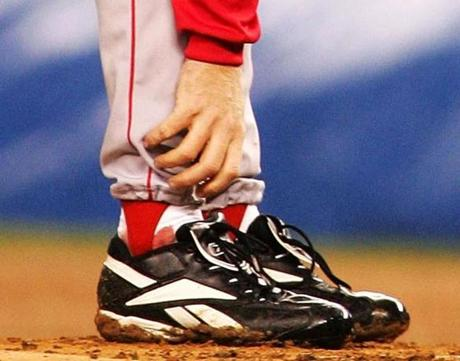 The hobbled Schilling returned to start Game 6 and earned the win after seven strong innings in a game that made his bloody sock famous.